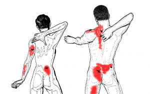 About myofascial trigger points